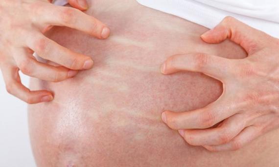 colestase gravidez sintomas causas