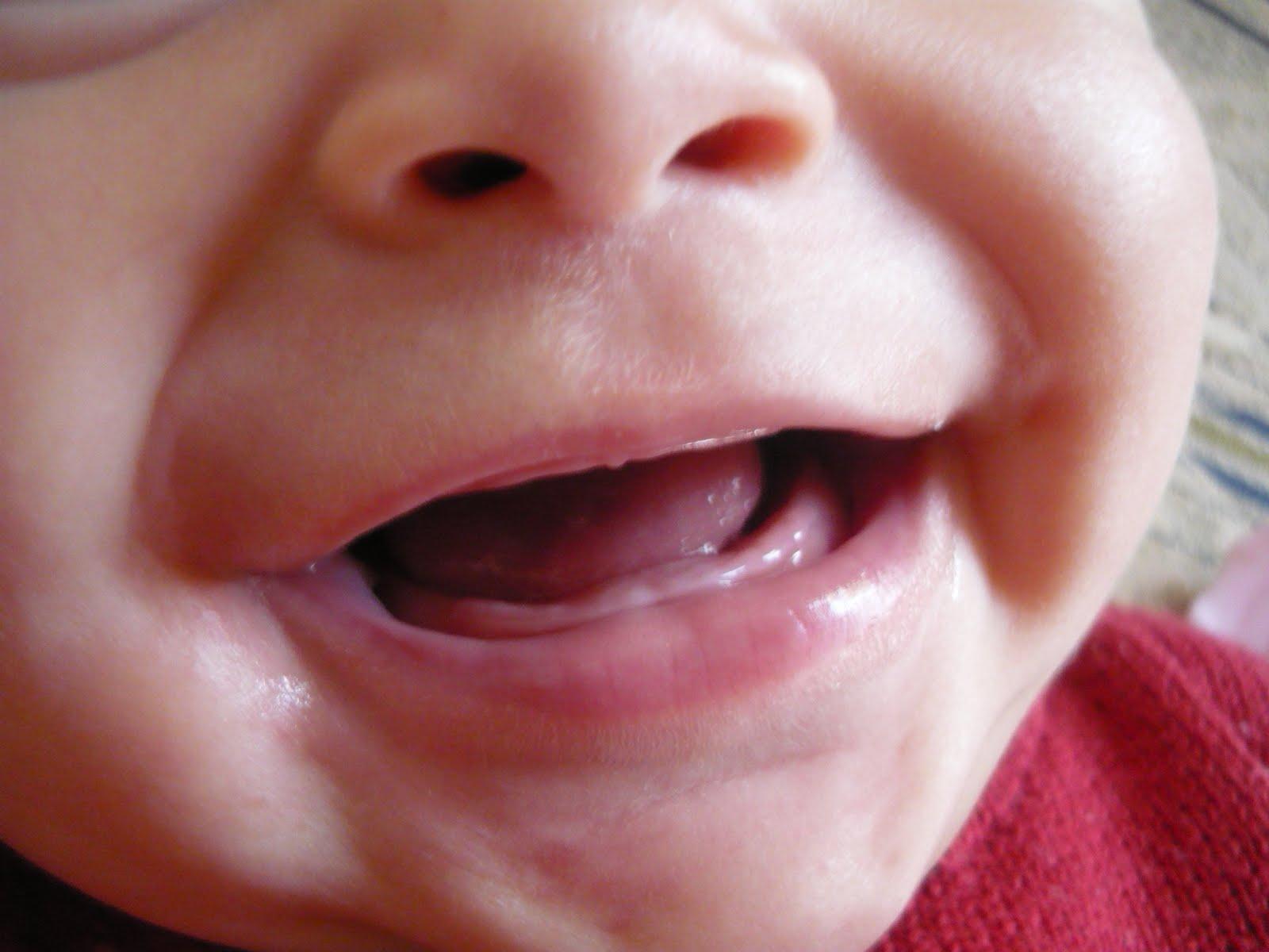 gengiva-bebe-inchada